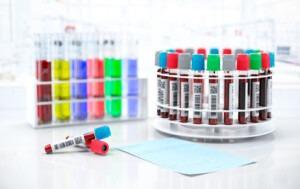 étiquettes pour cryogénie et stérilisation Etik Ouest Medical